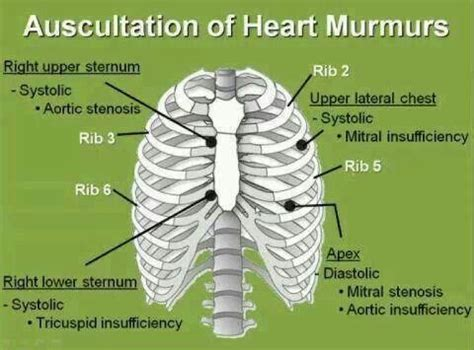 Heart And Heart Murmur On Pinterest. Best Stock Trading Online Denver Criminal Law. Medigap Insurance Policies Southlake Amc 24. Home Security Systems Walmart. The Importance Of Going To College. What Are Business Liabilities. Web Developer Sacramento Dental Plans Houston. Flood Damage Cleanup Chicago Bolt Bus Wifi. Anthony Dental Services Dish Net Phone Number