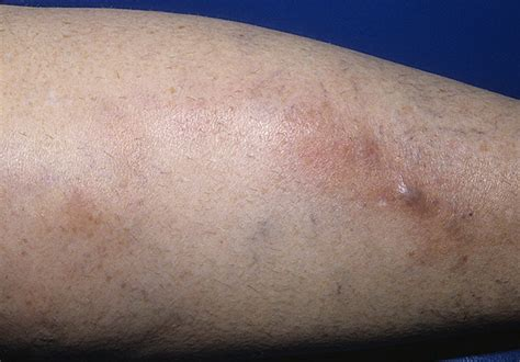 phlebitis early stages pictures   images