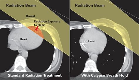 radiation therapy seattle cancer care alliance