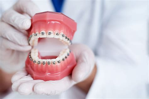 My daughter has been with them for braces. Orthodontics   General Dentist   Marcus Black DDS Rogers AR