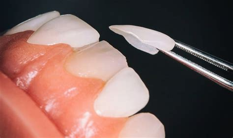 The health insurance section of the nhis family core (fhi) has a full range of data items addressing health insurance. How are Veneers Used in Dentistry - Elite Dental Care Tracy