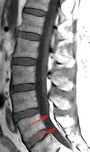 Thickened Filum Tethered Cord MRI