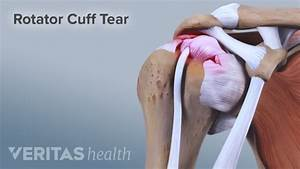 torn rotator cuff pain relief