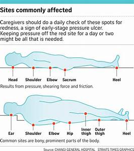 Pressure Ulcers A Pressing Concern For Elderly Patients