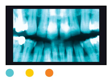 rays dangers ct radiation ray scans exposure cro surprising index danger scan consumerreports radiology beam health risk visit dental spectrum