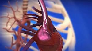 Centrosflo U00ae Long-term Hemodialysis Catheter