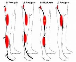 best knee arthritis pain relief