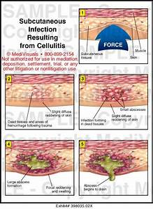 Medivisuals Subcutaneous Infection Resulting From