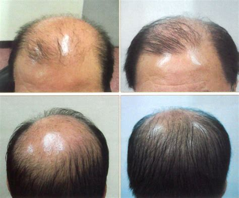 how much is laser treatment