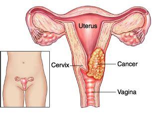 Rahim Wanita Wikipedia File Cervical Cancer Jpg Wikimedia Commons