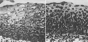 Вирус папилломы человека 16 31 35 лечение