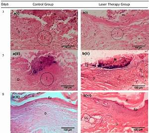 The Histological Examination Of Skin Wound Which Was