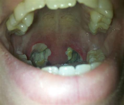 Tonsillectomy Day 6 Scabs Bleeding Surgery Help Pinterest