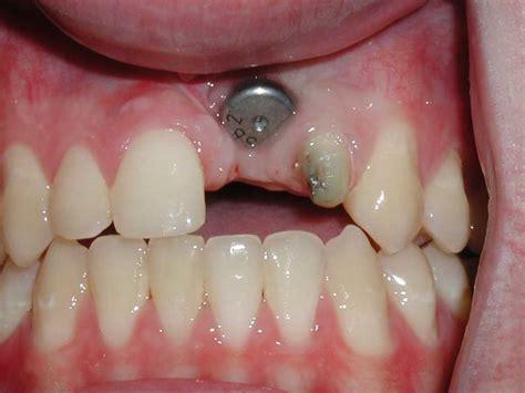 custom dental implant abutments dr caputo