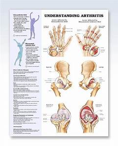 Understanding Arthritis Anatomy Poster