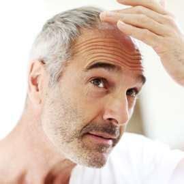 Haarausfall bei männern ursache