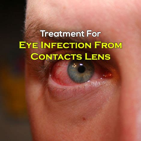 treat eye infection  contacts usage
