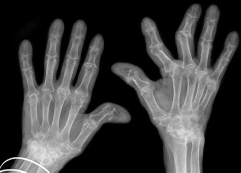 Knuckles And Joints Does Cracking Knuckles Cause Arthritis