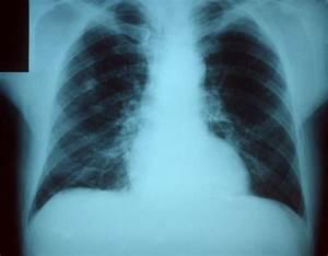 File Pneumonia X Ray Jpg