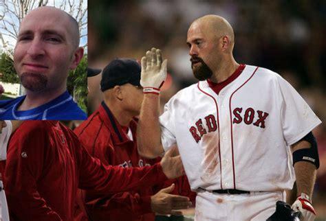 worst hair baseball facial beards