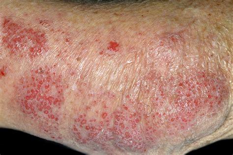 dermatitis aureus staphylococcus atopic disease complex type care health cold weather winter worse clonal linked activity variation dermatology months colonized