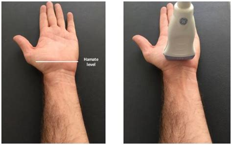 Reliability of measurement of the carpal tunnel and median ...