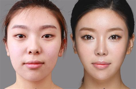 Asian Celebrities Plastic Surgery Before And After Pictures Ktm 500 Exc Plastics How To Glue Plastic Metal Cheapest Place Buy Storage Bins Epoxy For Alphabet Letters Containers Home Depot Heavy Duty Plates Wedding Stackable Boxes With Lids