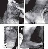 Лечение псориаза лактулозой