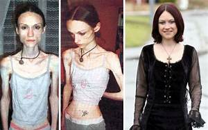 45 'Before & After' Photos Of People Who Beat Anorexia ...