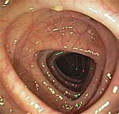 important  prepare   colonoscopy