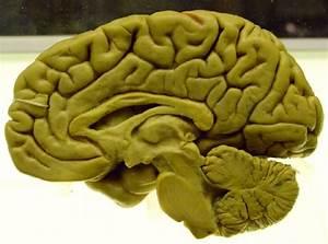 The Brain - Sagittal Section - RobotSpaceBrain