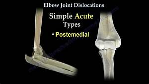 Elbow Dislocations - Everything You Need To Know