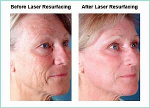 benefits of ipl skin rejuvenation
