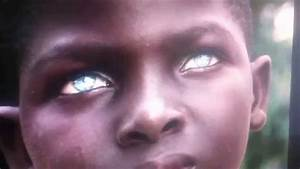 Black African Boy with Blue Eyes - YouTube
