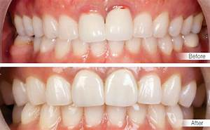 Kombine Dental - Dentist in Kusadasi - Serhan IZER Dentist BDS