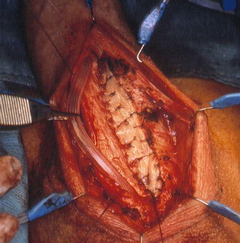 Ufficio Per L Impiego Reggio Emilia - la ricostruzione dell uretra maschile con l impiego della