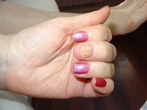 Как выглядит грибок на коже пальцев рук