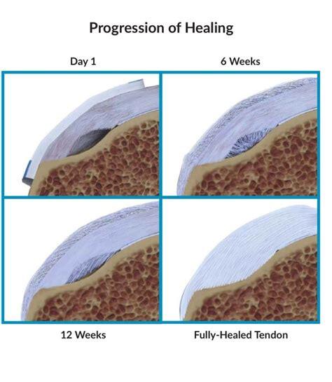 Partial Rotator Cuff Tears – Howard J. Luks, MD