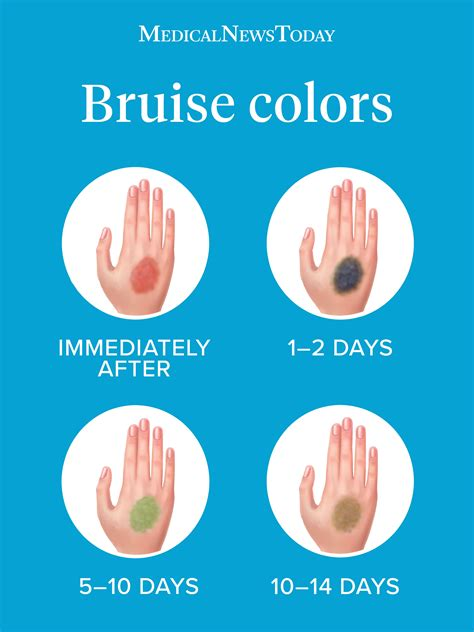 why do bruises change color healthcare wellness family concepts what do the colors of