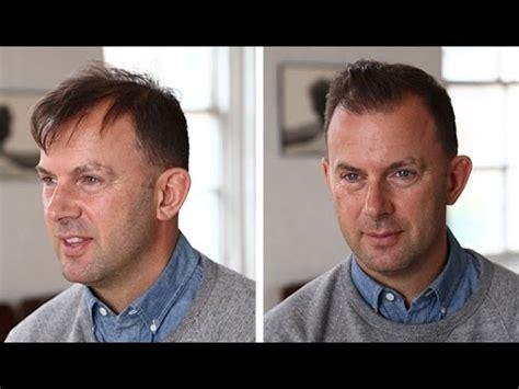 mens hairstyle tutorial thin  thinning hair youtube