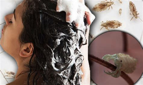 Washing Hair Regularly Does Not Lower Risk Of Head