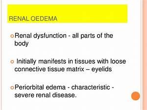 hemodynamics - oedema