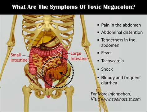 Toxic Megacolontreatmentprognosiscausessymptomsdiagnosis. Free Online Smtp Server Best Long Range Rifle. St Petersburg Locksmith Dentists In Parker Co. Wells Fargo Home Mortgage Customer Service Phone Number. How To Start A Text Message Marketing Business. Active Directory Monitor Cardboard Box Layout. Data Protection And Backup Nexus Pain Center. Software Like Quickbooks Roof Repair San Jose. 1920 X 1080 Resolution Monitors