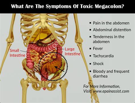 Toxic Megacolontreatmentprognosiscausessymptomsdiagnosis