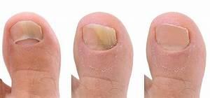 Грибок на ногах уксусная эссенция
