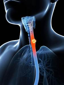 Throat Cancer Warning Signs