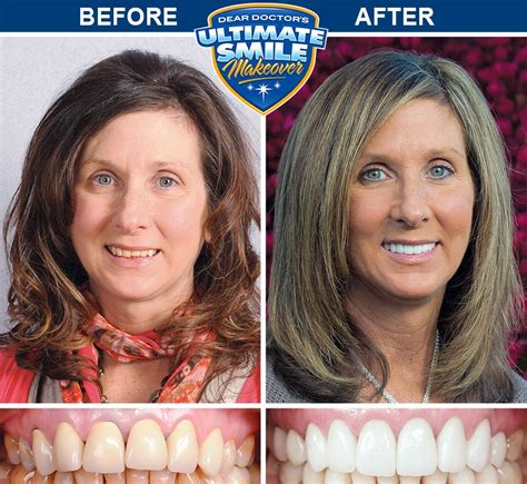 Smile Makeover Contest Winner - Sue - Cosmetic Dental Makeover