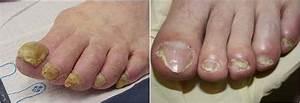 Грибок ногтей на ногах лечить за 1 день