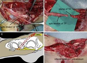 Extensive Loss Of Tibialis Anterior Tendon  Surgical
