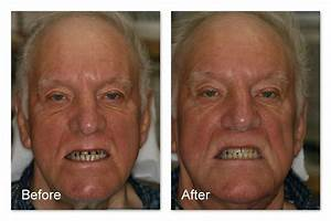 Tooth Colored Fillings Gallery – Dr. Jack M. Hosner, D.D.S.